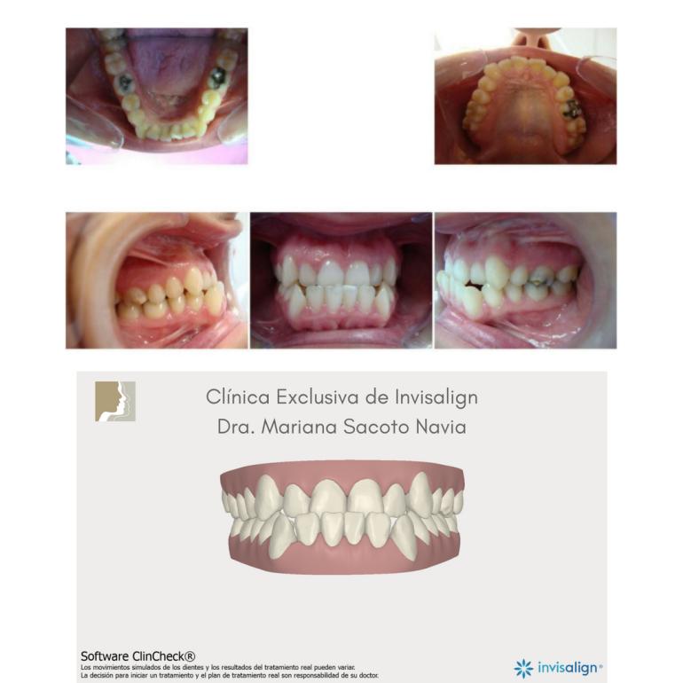 Clínica Exclusiva de InvisalignDra. Mariana Sacoto Navia caso paciente Invisalign