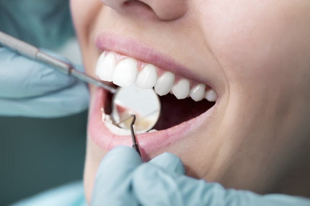 Clinica Exclusiva Invisalign Doctora Mariana Sacoto Navia Invisalign Barcelona Ortodoncia Invisible Invisalign
